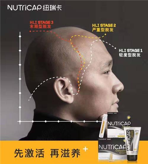 头发太油会脱发?想拯救发际线先从正确洗头开始!